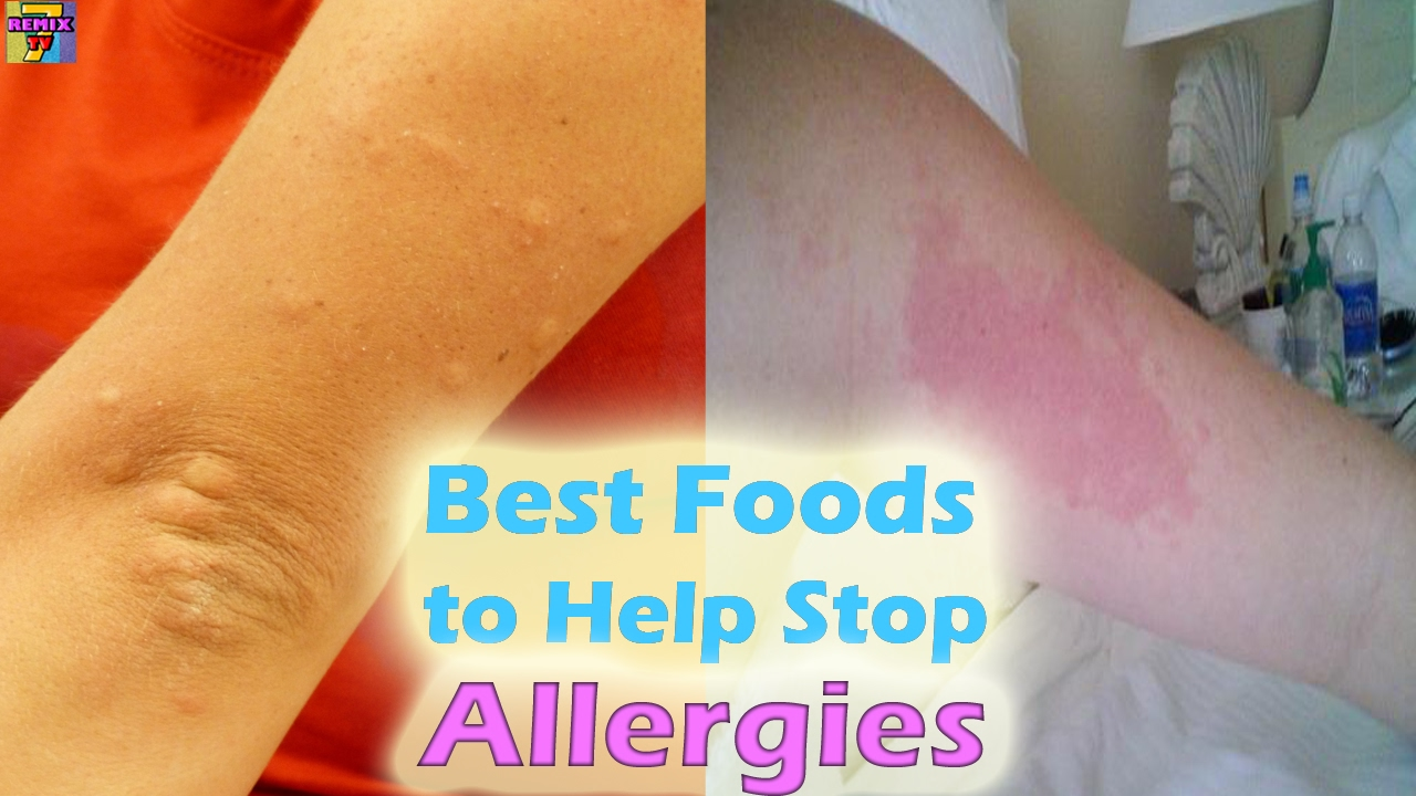 Eat These Foods to Fight Allergies recommendations