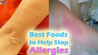 Top 10 Foods To Fight Allergy Naturally | Anti-Allergic Foods By Ta...