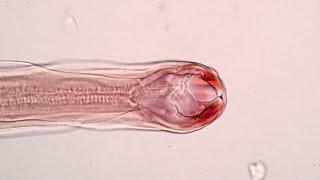 Ancylostoma braziliense ♀