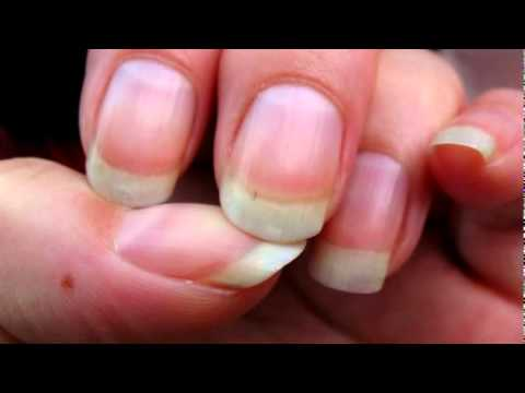 Ridges in Nails - YouTube