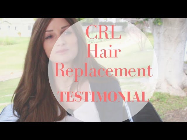 CRL Hair Replacement System - Patient Testimonial of