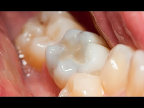 Composite Dental Filling