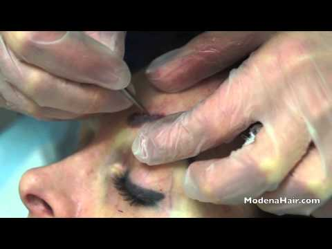 FUE Eyebrow Transplant At Modena Hair Institute