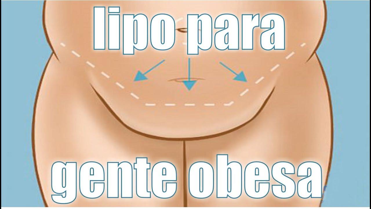LIPO PARA GENTE OBESA 👙 ¿Puede alguien con SOBREPESO hacerse una LIPOESCULTURA? 🤩 Dr ALBERTO CALVO