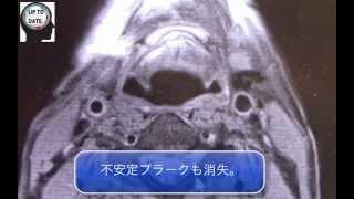 頸動脈不安定プラークの画像診断(Black-blood法)【画像診断チャンネル】