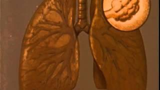 Emphysema (University of Washington School of Medicine, 1959)