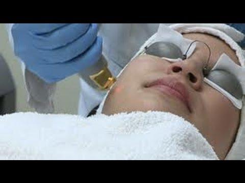 laser hair removal miami llc birth control hair