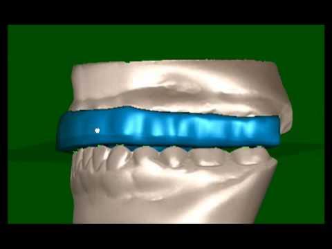 Digital Splints Tmd Head Neck Pain Bruxism Appliances