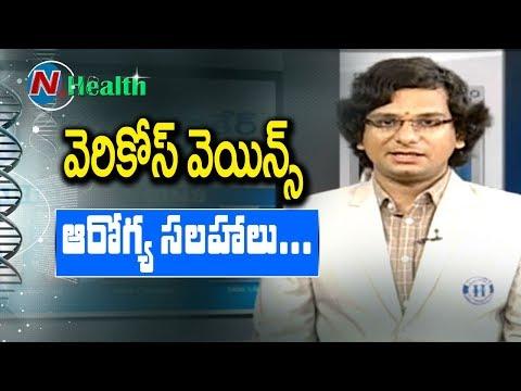 Varicose Veins: Treatment, Cause, Symptoms || Hello Doctor || NTV
