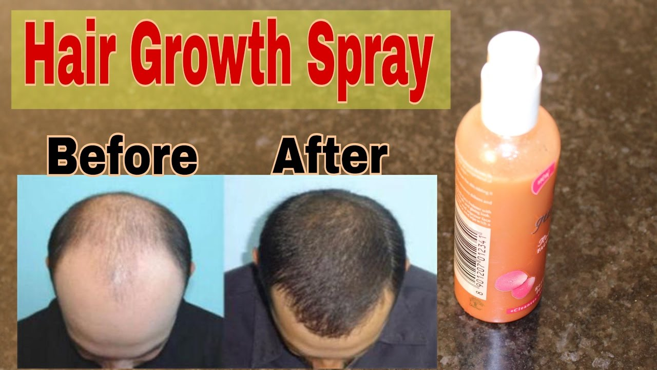 Hair Growth Spray For Baldness Hair Loss Scalp Infection Tanya