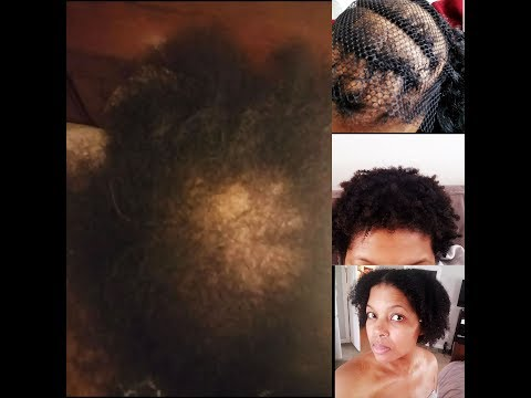 how-i-was-diagnosed-and-treated-for-three-different-types-of-severe-hair-loss