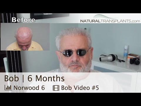 Best Hair Transplant Before And After | 6 Months | Miami Florida (Bob)