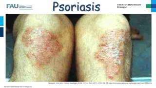 Dermatologie ─ Psoriasis