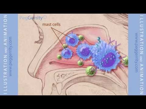 Medical Animation of Allergic Response and Nasonex from www.peggerrity.com