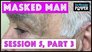 The Masked Man, Dr Pimple Popper, & NikkieTutorials! Session 5, Part 3