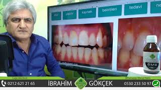 Diş Eti Çekilmesinin Tedavisi, Diş Eti Çekilmesi Ormus Gümüş ile Geçer