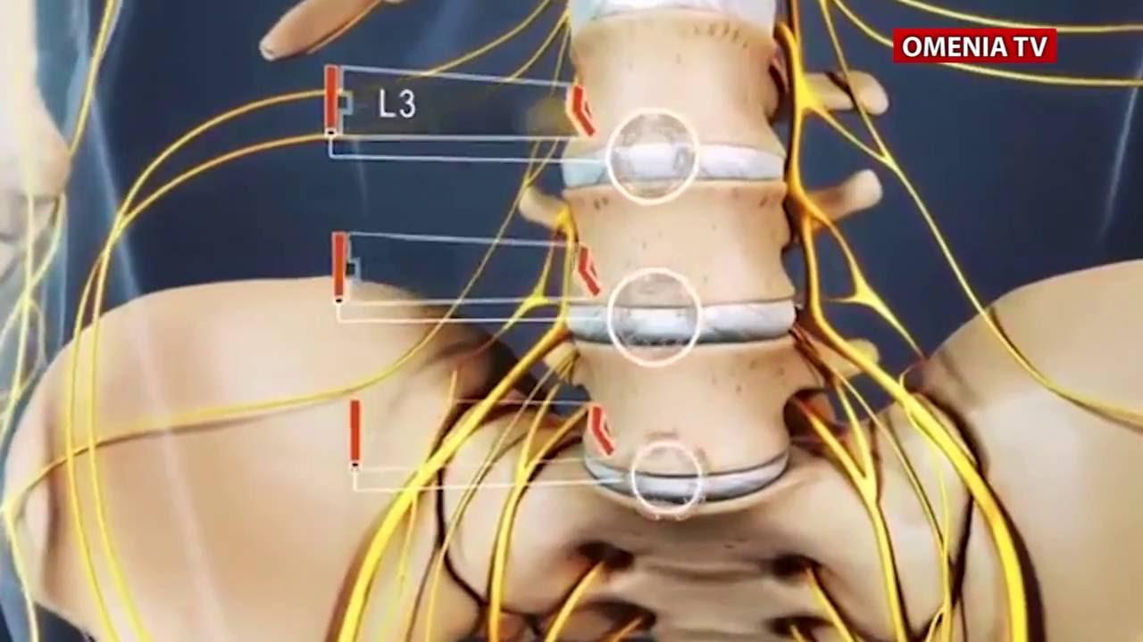 masajulomului Masajul terapeutic la bolnavii cu hernie de disc