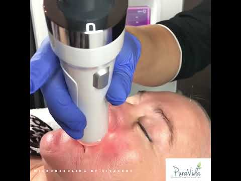 Improving Vertical Lip Lines with Vivace RF Microneedling at Pura Vida Fleming Island