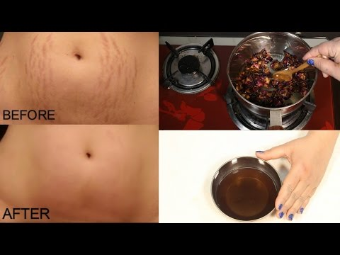how-to-remove-pregnancy-stretch-marks-works-100%---cure-injury-&-burn-in-3-days-miracle-oil