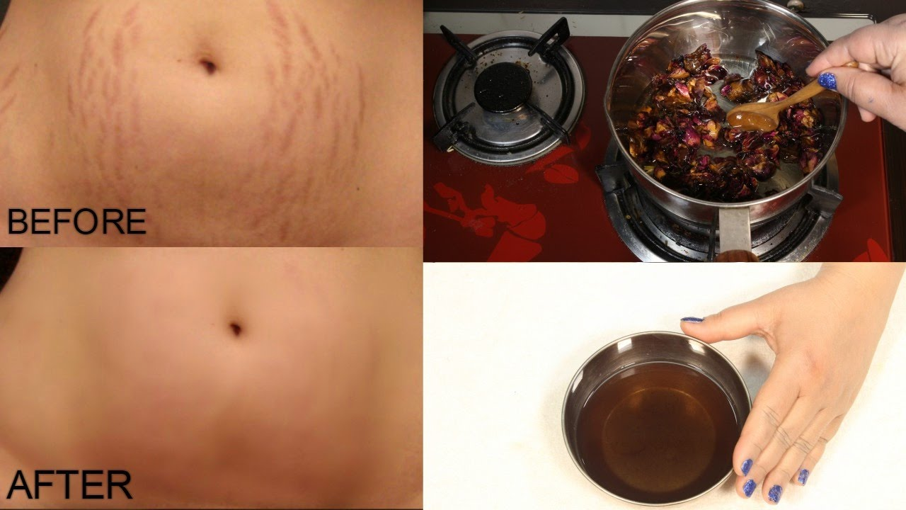 how to remove stretchmarks
