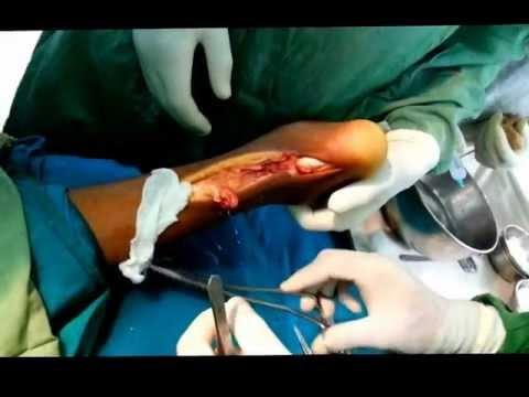 Tendo Achilles repair by Dr Kiran, Orthopaedic Surgeon