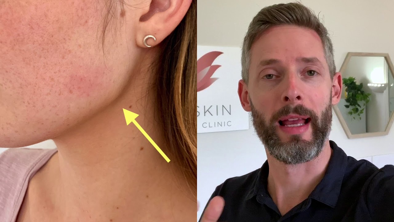 Facial / jawline slimming treatment | $550 for 50 units | Melbourne