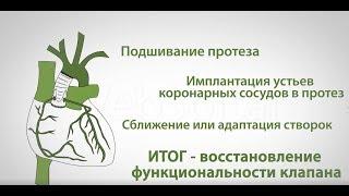 Недостаточность аортального клапана (операция Якуба)