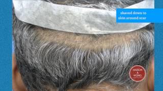 hair transplant results scar focus 07 closeups