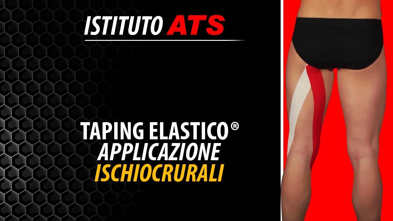 Taping Elastico® - Applicazione Ischiocrurali - YouTube
