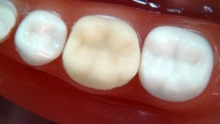 """How to make a temporary crown? """"for dental students"""""""