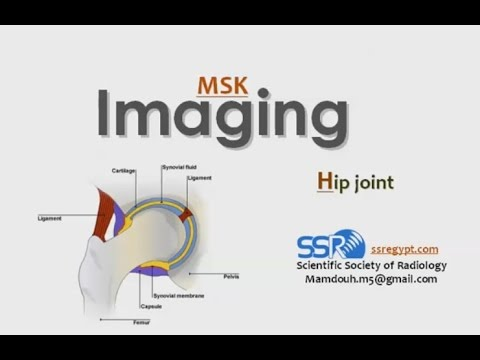 Imaging of Hip joint - Prof. Dr. Mamdouh Mahfouz (In Arabic)