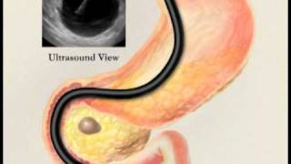 Endoscopic Ultrasound with Fine Needle Aspiration Biopsy