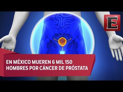 Il papilloma alla vescica e benigno Papilloma virus e tumore alla prostata