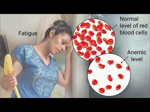 LEUCEMIA: Descubra las Causas, Sintomas y Prevencion para que Usted no la Sufra
