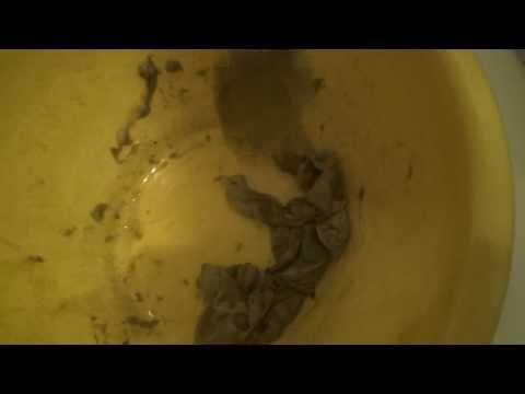 Очищение от гельминтов, глистов, паразитов и простейших