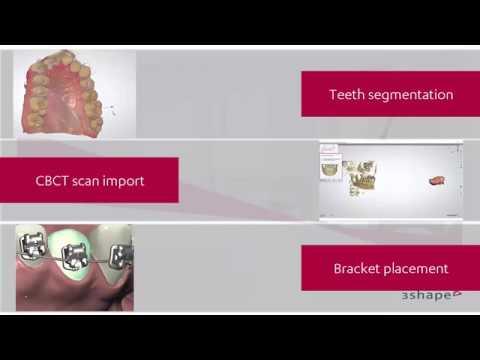 Ortho System - Introduction to the 3Shape Ortho solutions - Ortho Analyzer
