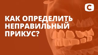 Неправильный прикус зубов: признаки и последствия – Эксперимент