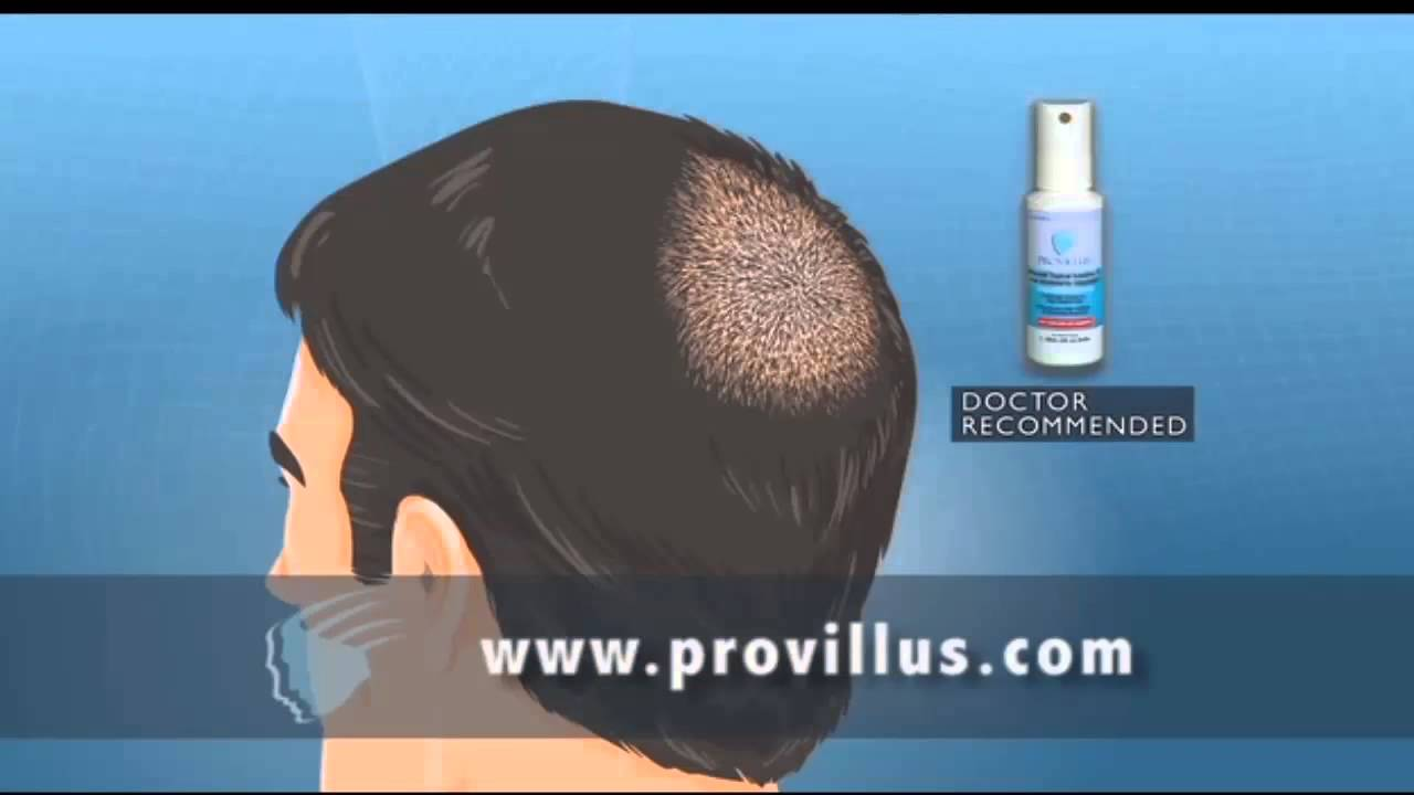 Provillus Spray For Men Hair Loss Treatment Reviews Youtube