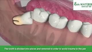 Wisdom Tooth Extraction Treatment Procedure | Apollo White Dental