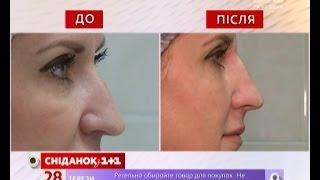 як змінити форму носа без операції