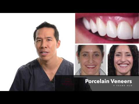 The Cost Of Veneers - Why Are Some Cheap And Others Expensive?