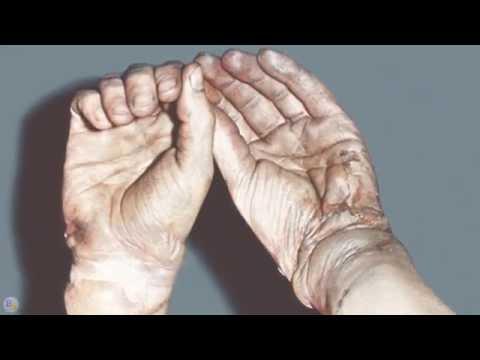 Мочевая кислота в крови повышена: симптомы, причины