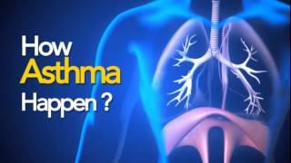 Asthma-3D Animation