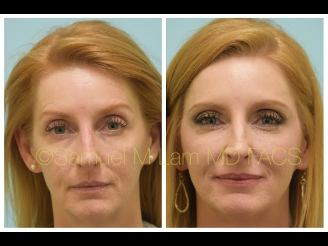 Dallas Corrective Injectable Filler & Botox Testimonial with Before & After Photos