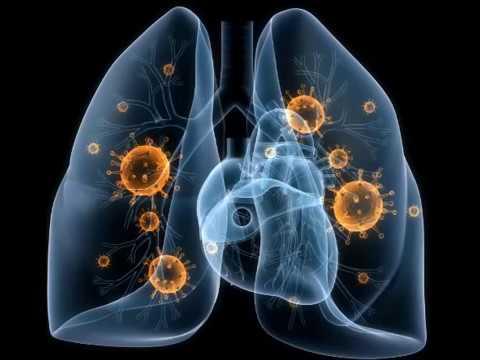 Туберкулёз, симптомы и описание болезни.