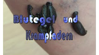 Blutegel und Krampfadern(, 2016-09-18T12:34:27.000Z)