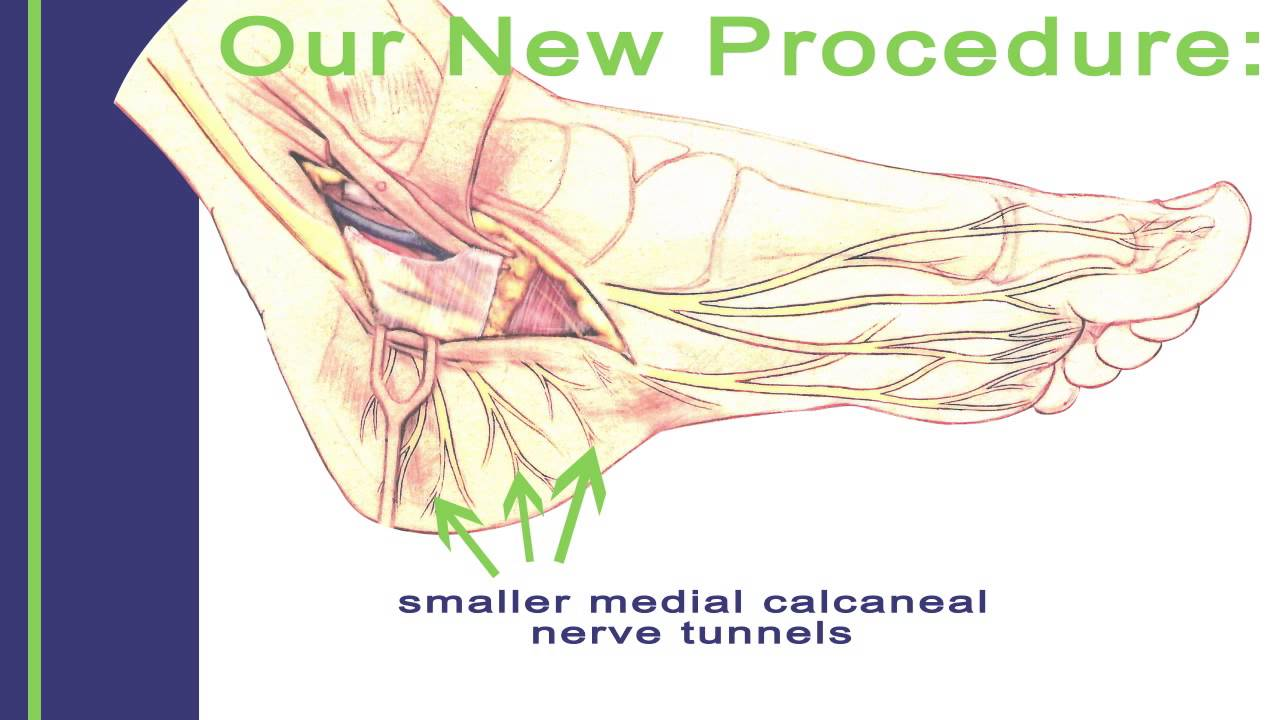 New Effective Treatment For Tarsal Tunnel Syndrome Youtube