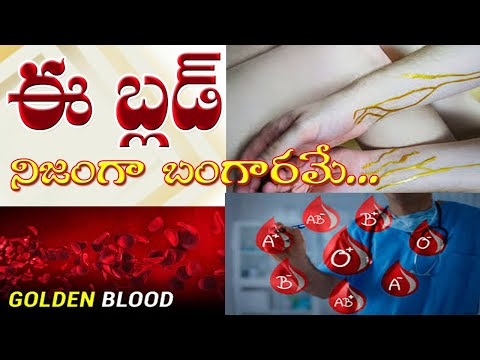 Diet By Blood Type A Negative
