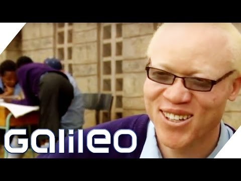 Albinos in Afrika | Galileo | ProSieben