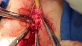 Repeat youtube video Perineoplastia com sling / Perineoplasty with sling